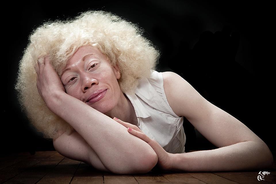 A.N.I.D.A Tous ensemble pour l'albinisme | Roots Magazine